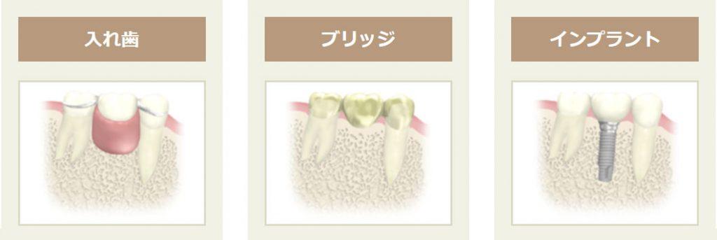 1本歯がない場合