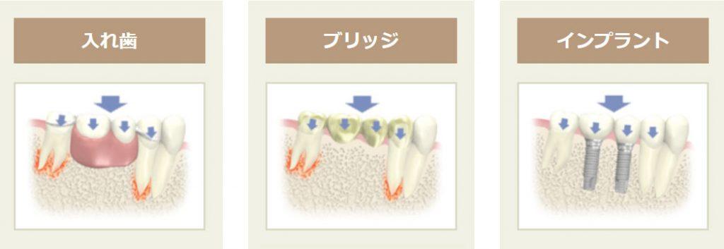 複数本歯がない場合