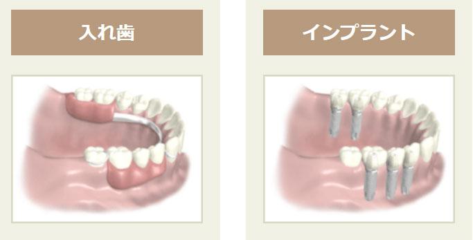 両側の歯が複数ない場合